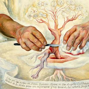 Las manos del doctor Moore
